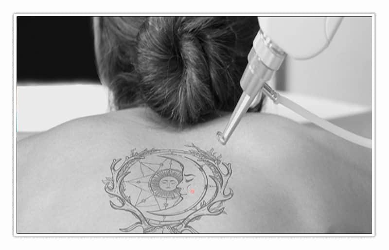 curso eliminación tatuajes